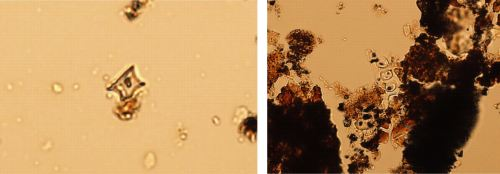 Microscopic analyses of pottery residues can reveal fragments of foods. The image at left is a phytolith of maize or corn while the image at right is of a variety of grasses and shrubs (images courtesy of Andrew Lints).